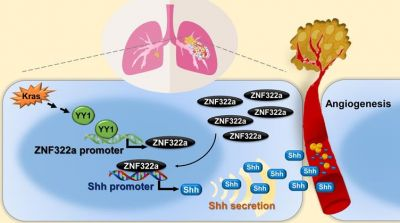 Dysregulated Kras/YY1/ZNF322A/Shh axis trans-criptional enhances neo-angiogenesis to promote lung cancer progression